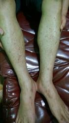 Bệnh nhân Anh là Công an huyện Văn Lãng - tỉnh Lạng Sơn, bị xuất huyết ngoài da chữa thuốc tây y nhiều tháng không khỏi mà còn bệnh càng ngày càng nặng hơn anh đến phòng khám dùng thuốc nam trong một tháng bệnh đã khỏi _1
