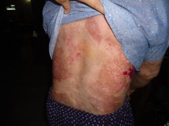 Bệnh nhân bệnh Triệu Thị So 68 tuổi bị bệnh Pemphigus chữa khỏi bằng thuốc nam