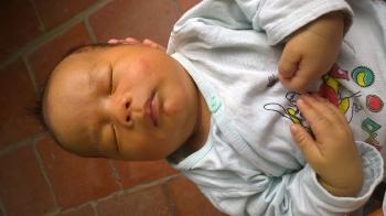 Trẻ sơ sinh vàng da bệnh lý chữa khỏi nhanh bằng thuốc nam không cần đi bệnh viện