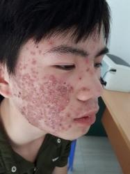 Bệnh nhân viêm da mặt đã được chữa khỏi_5