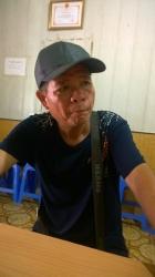 Bệnh nhân 54 tuổi ở Bằng Tường Trung Quốc Bị đau vai gãy kèm theo tăng huyết áp