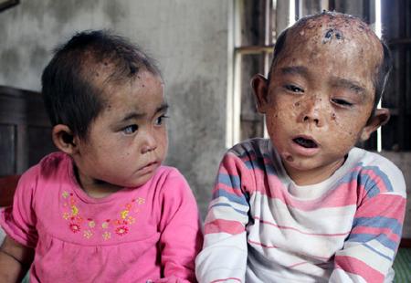 Hai đứa trẻ mắc bệnh lạ, răng đen kịt ở Nghệ An đã chữa khỏi (chữa từ thiện)